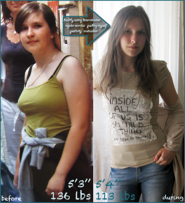 Pro Ana Before And After 57 | www.pixshark.com - Images ...
