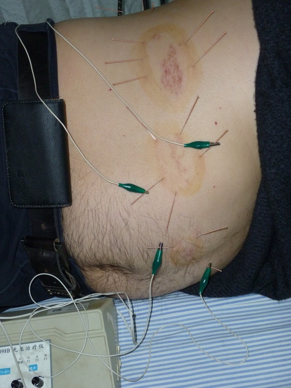 Circling the Dragon with Electroacupuncture