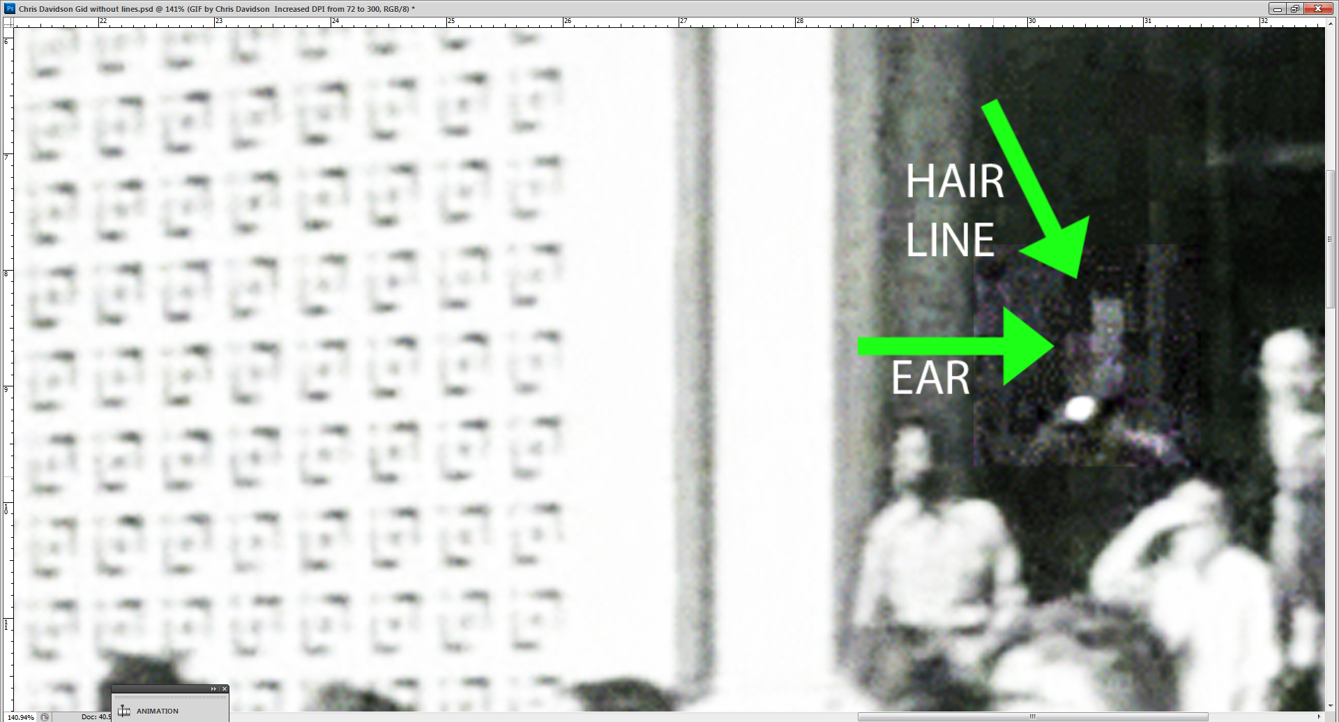 Hairline%20and%20ear.jpg
