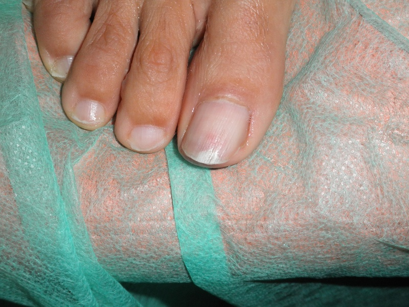 Painful distal eritronichia and distal onycholisis