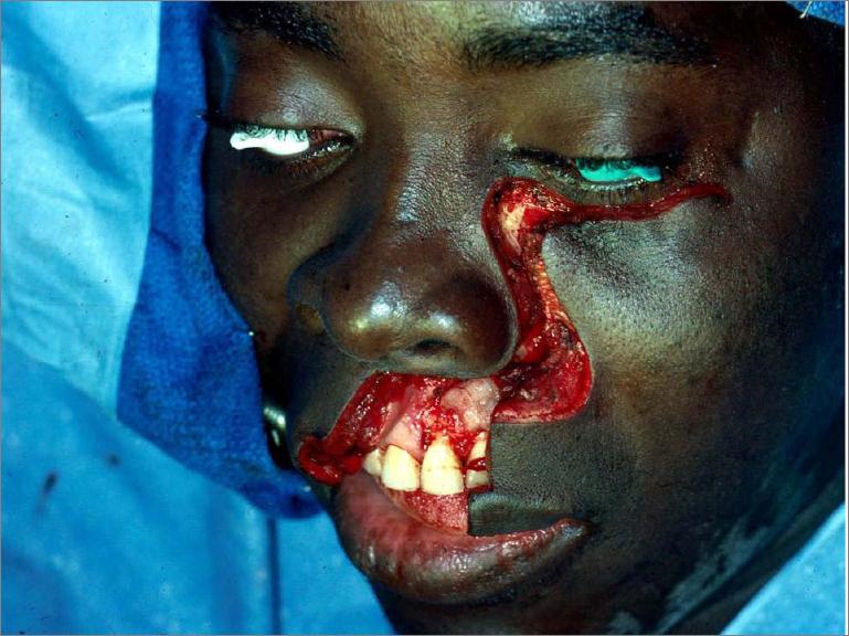 Weber-Ferguson incision